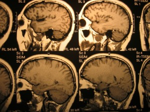 nutritional supplements for concussion